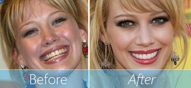 hilary-duff-veneers-before-and-after-teeth