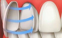 white-porcelain-veneers-example-diagram