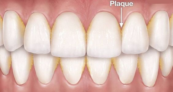 How Cavities form – and how to stop them!